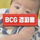 bcg 경피용 로트번호/제조번호 예방접종도우미 사이트