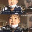 [고 최진실 딸 최준희 양]유튜브 통해 희귀질환 루프스 병 투병 고백...루프스 란...
