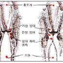 급성 후두개염으로 생긴 크루프 Croup caused by acute epiglottitis