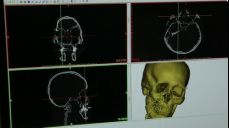 3D 바이오 프린팅 기술로 되찾은 환자의 자신감 107회 무료 다시보기: 인간을 향한 진화 - 바이오의약품 SBS